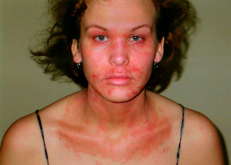 Крем от шрамов и рубцов на лице после прыщей отзывы
