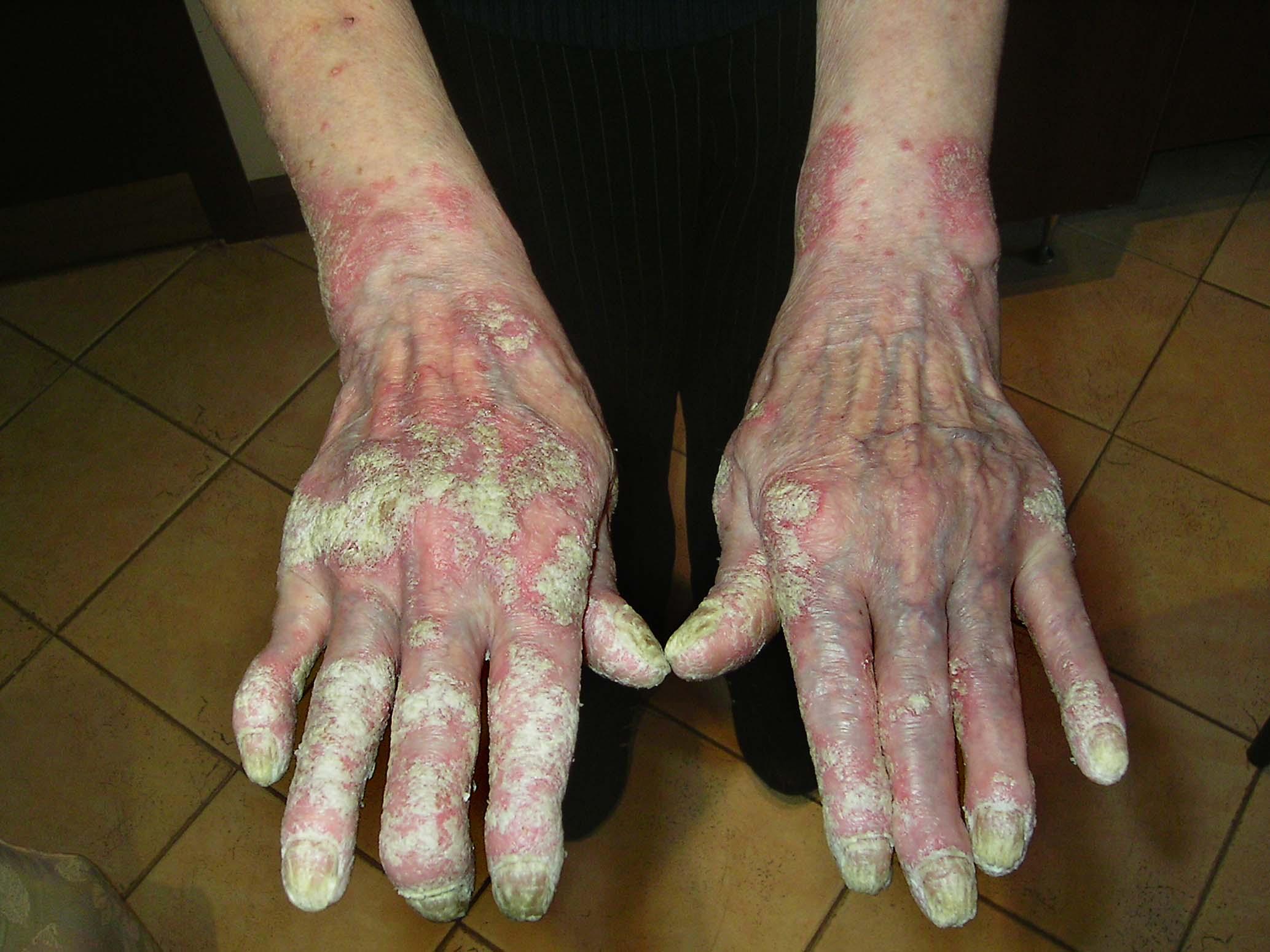 скрытая пищевая аллергия